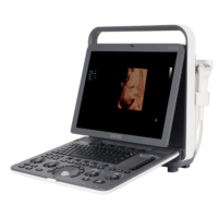 ultrassom-medico-evus-8-saevo-medical1-600x600